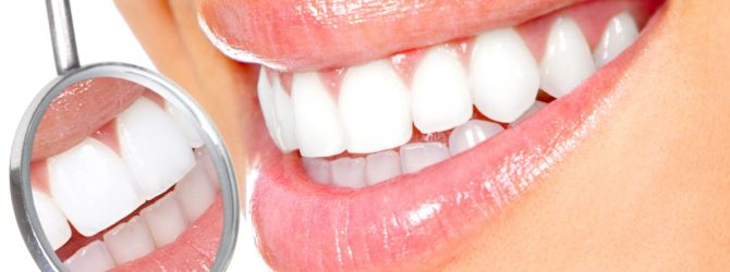отбеливание зубов сша